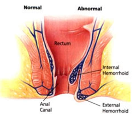 Hemorrhoids signs, diagnosis, and treatment png 549x480